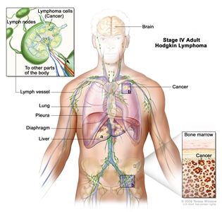 Stage IV adult Hodgkin lymphoma; drawing shows cancer in the liver, the left lung, and in one lymph node group below the diaphragm. The brain and pleura are also shown. One inset shows a close-up of cancer spreading through lymph nodes and lymph vessels to other parts of the body. Lymphoma cells containing cancer are shown inside one lymph node. Another inset shows cancer cells in the bone marrow.